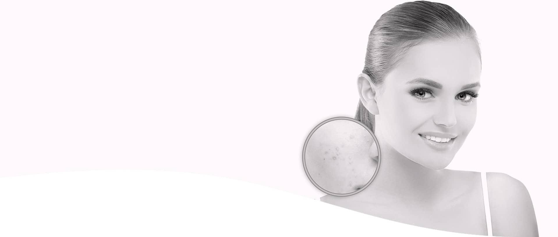 Traitement Couperose & Rosacée | Traitement Médico Esthétique au Laser