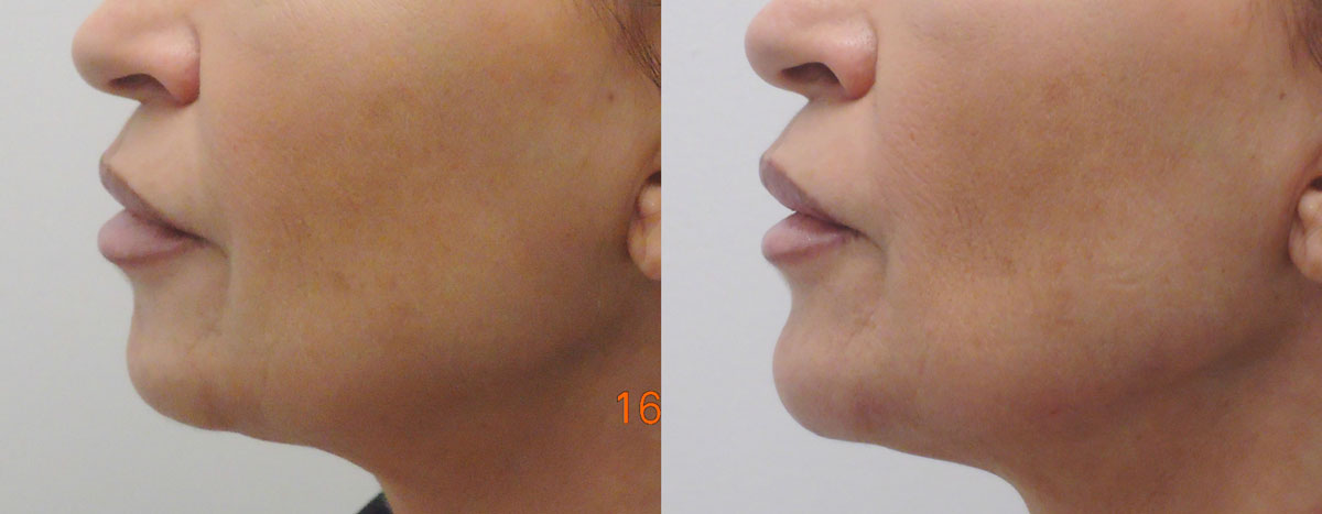 dermal-filling-jawline-pre-post