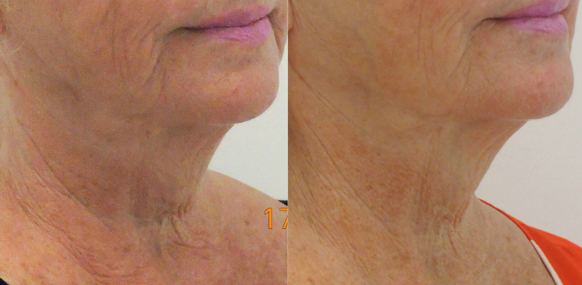dermal-neck-lift-pre-post